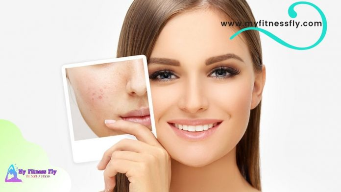 homemade remedies for pimple